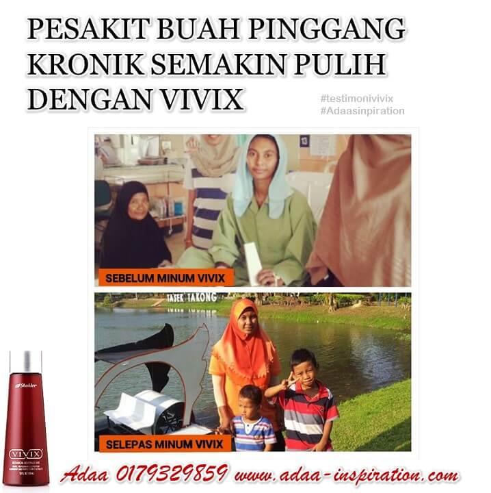 vivix 22