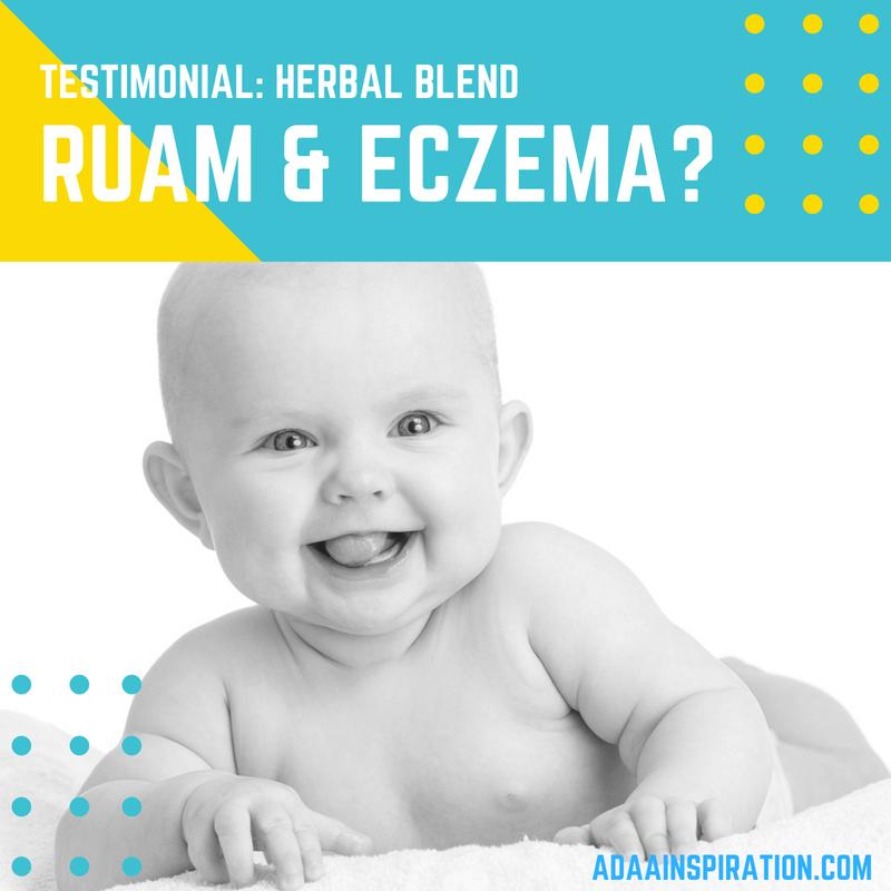 Rum bayi dan eczema