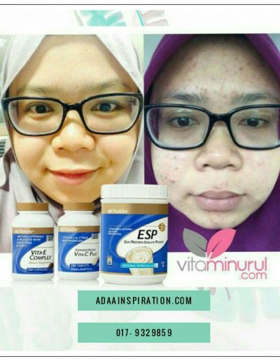 Testimonial Vitamin C Shaklee (66)